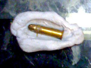A picture of the bullet