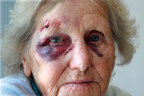 Beryl Hall, 81, who was knocked over by a cyclist who mounted the pavement