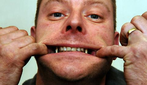 Alan Shaw, 41, pulls back his mouth to reveal the wires which are holding his jaw together