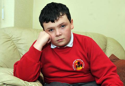 Victim Gabriel Wishart, ten, at home after the incident in which he was set on fire
