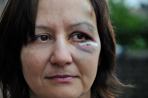 Barbara Khan, who was hit in the face by a tree branch