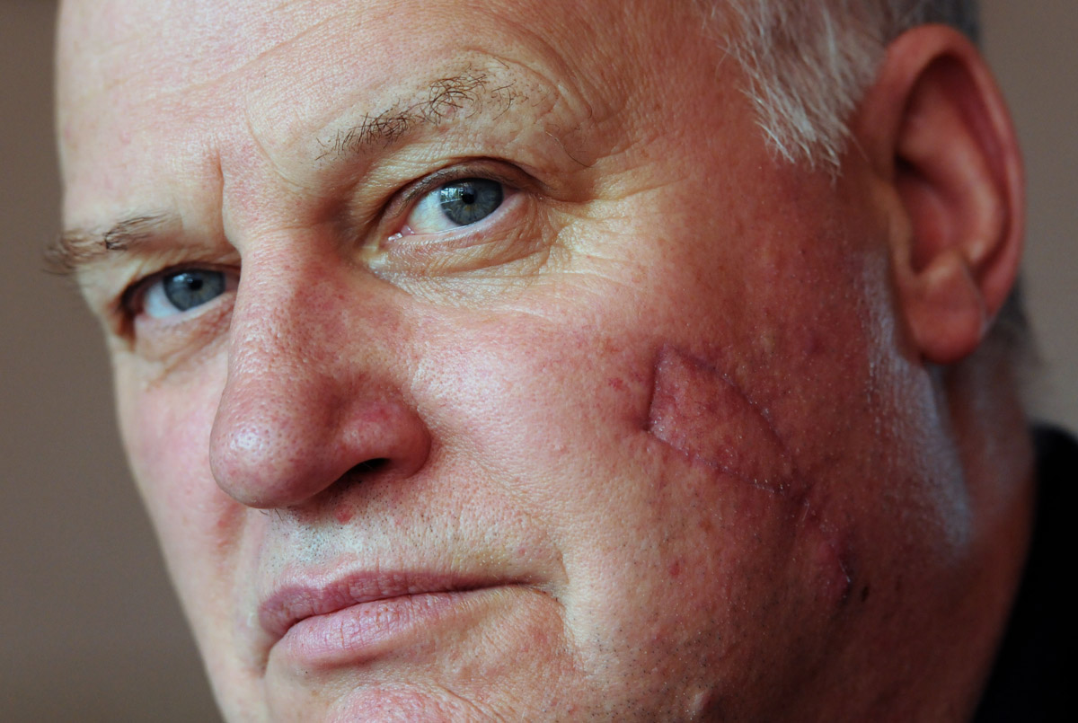 Stephen Hinchcliffe, who needed an operation to remove part of his cheek after he found - 2516005