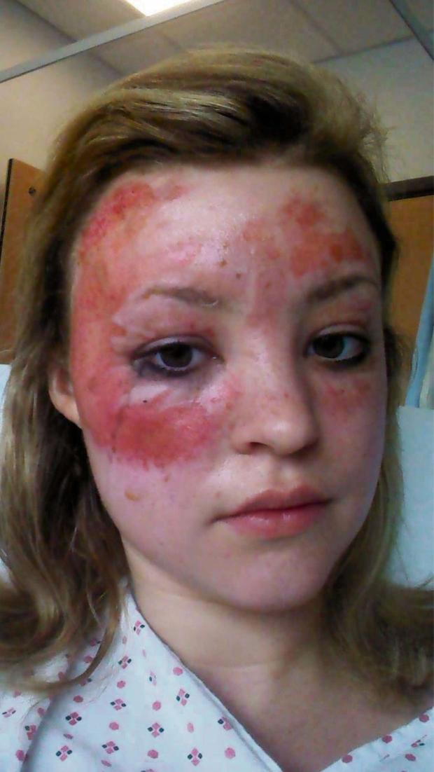 York Press: The horrific burns on Lucy Morgan's  face