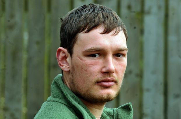 Ex-soldier James Dalby, from York, who was seriously injured in an Afghan explosion in 2010