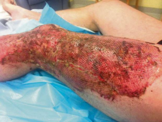 York Press: The horrific injuries sustained by Mark Mellard.